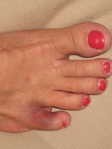 Awesome bruise on a broken toe!