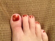 Broken Toe - It's healed!