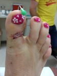 Broken Toe - Follow up visit #1