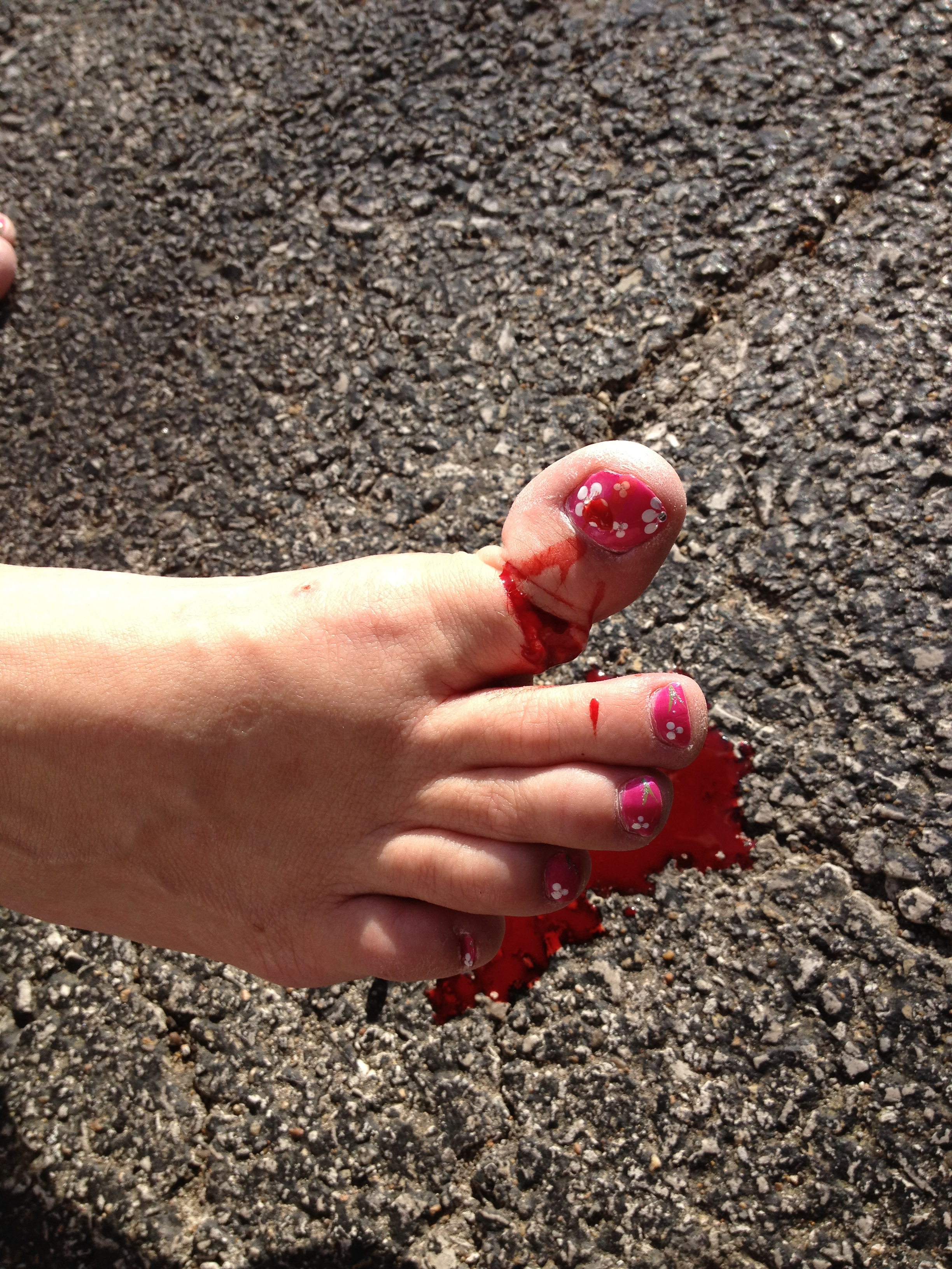 My Big Broken Toe – Photos for Friends | Pink Gis & Painted Nails
